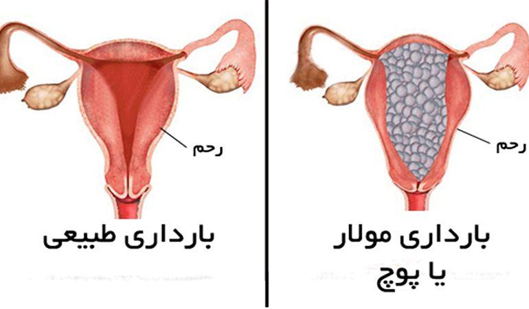 حاملگی مولار چیست ؟