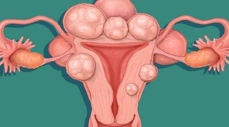فیبروم های رحم و بارداری