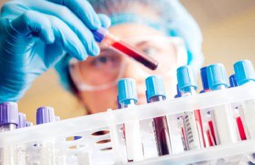 فرایند آزمایش خون در دوران بارداری | متخصص زنان بجنورد