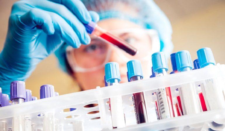 فرایند آزمایش خون در دوران بارداری