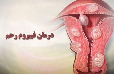 روش های درمان فیبروم رحم   متخصص زنان بجنورد